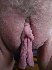 large labia